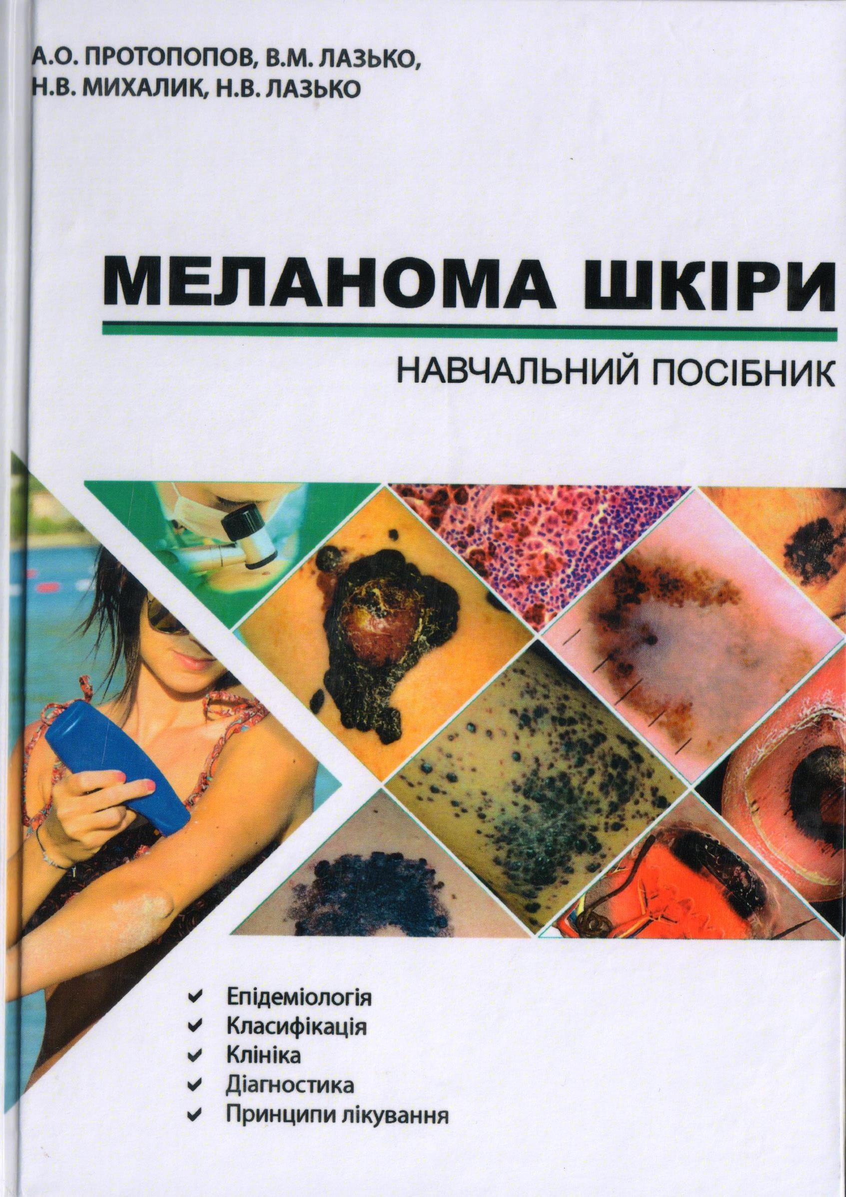 Книга-меланома